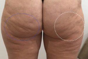 capitons cellfina paris dr loreto chirurgien esthetique