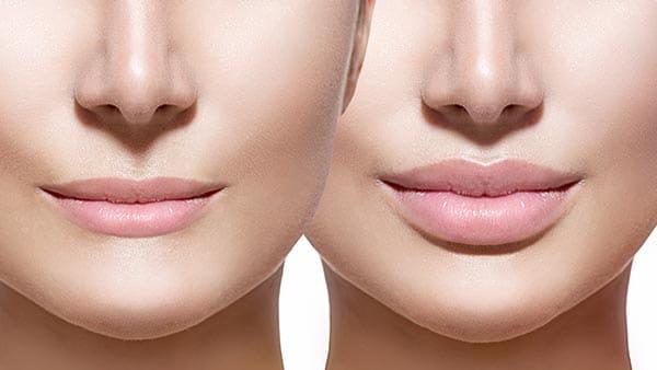 Injection lèvres avant après