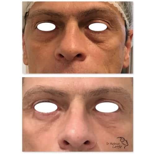 blepharoplastie avant apres blepharoplastie apres 10 jours chirurgie des paupieres photos chirurgie esthetique visage paris docteur federico loreto chirurgien esthetique paris 16