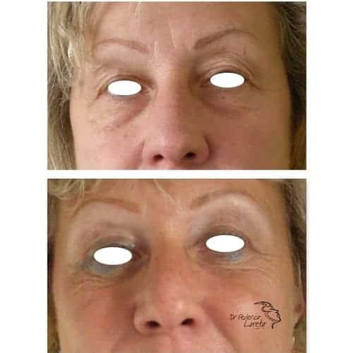 blepharoplastie avant apres blepharoplastie paupieres superieures blepharoplastie prix chirurgie esthetique visage paris dr federico loreto chirurgien esthetique paris 16