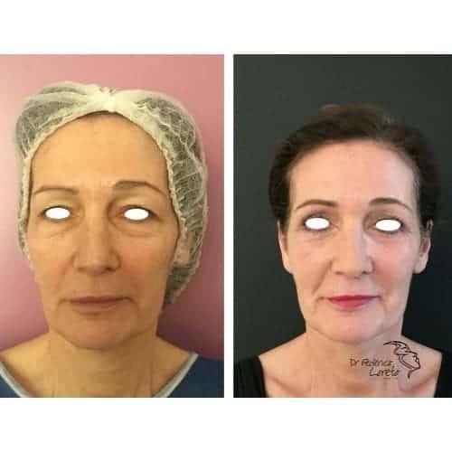 blepharoplastie avant apres chirurgie des paupieres photos blepharoplastie apres 10 jours chirurgie esthetique visage paris docteur federico loreto chirurgien esthetique paris 16