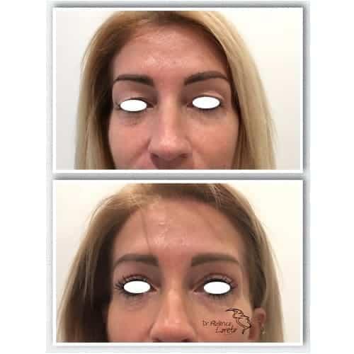 blepharoplastie avant apres chirurgie des paupieres photos blepharoplastie apres 10 jours chirurgie esthetique visage paris dr federico loreto chirurgien plasticien paris 16