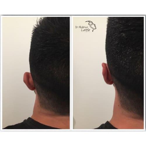 earfold avant apres earfold paris earfold prix medecine esthetique visage docteur federico loreto chirurgien esthetique paris 16