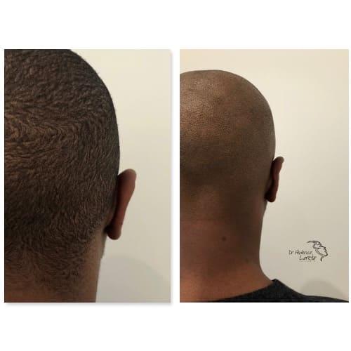 earfold avant apres earfold paris earfold prix medecine esthetique visage dr federico loreto chirurgien plasticien paris 16