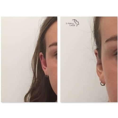 earfold avant apres earfold prix earfold paris medecine esthetique visage docteur federico loreto chirurgien esthetique paris 16