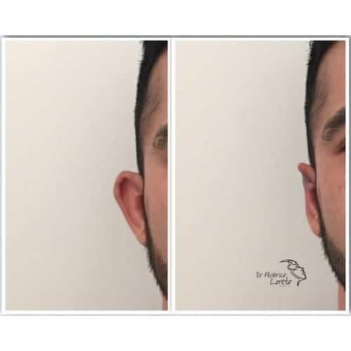 earfold paris earfold avant apres earfold prix medecine esthetique visage dr federico loreto chirurgien plasticien paris 16