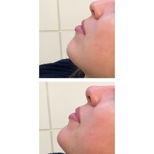 genioplastie avant apres genioplastie prix chirurgie esthetique menton chirurgie esthetique visage paris docteur federico loreto chirurgien esthetique paris 16