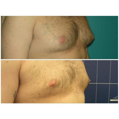 gynecomastie avant apres gynecomastie apres operation gynecomastie homme chirurgie esthetique seins paris dr federico loreto chirurgien plasticien paris 16