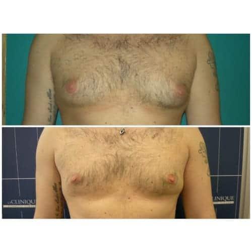 gynecomastie avant apres gynecomastie traitement gynecomastie homme chirurgie esthetique seins paris dr federico loreto chirurgien plasticien paris 16