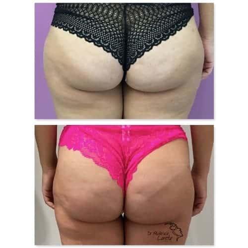 implant fessier avant apres prothese fessier avant apres implant fessier resultat chirurgie esthetique corps paris dr federico loreto chirurgien plasticien paris 16