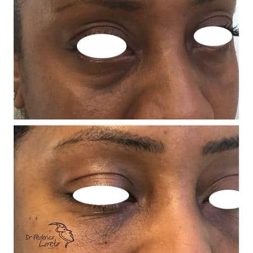 injection acide hyaluronique cernes acide hyaluronique avant apres acide hyaluronique injection chirurgie esthetique visage paris docteur federico loreto chirurgien esthetique paris 16