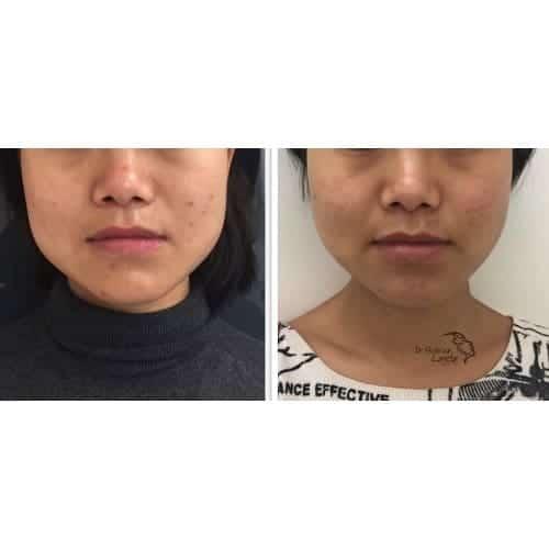 injection acide hyaluronique visage acide hyaluronique injection acide hyaluronique avant apres chirurgie esthetique visage paris docteur federico loreto chirurgien esthetique paris 16