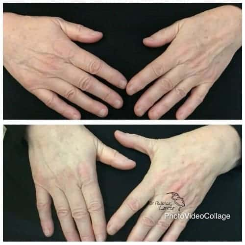 injections mains acide hyaluronique injection acide hyaluronique avant apres chirurgie esthetique visage paris dr federico loreto chirurgien plasticien paris 16