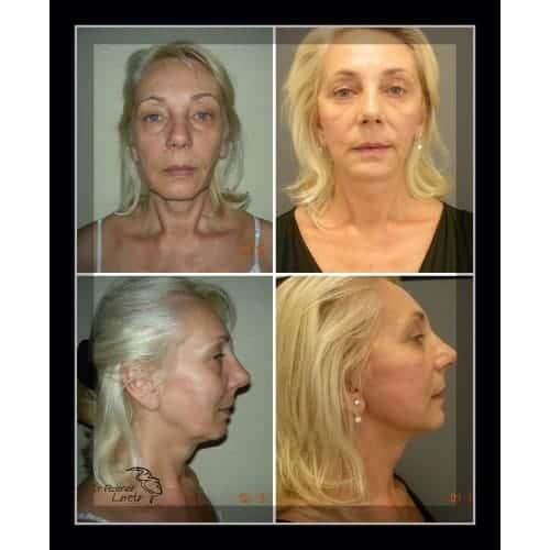 lifting visage avant apres lifting cervico facial avant apres lifting cou chirurgie esthetique visage paris docteur federico loreto chirurgien plasticien paris 16