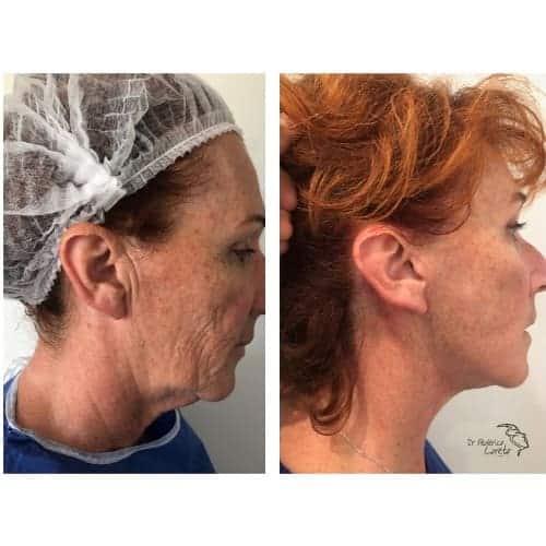 lifting visage avant apres lifting cervico facial avant apres lifting cou chirurgie esthetique visage paris dr federico loreto chirurgien esthetique paris 16