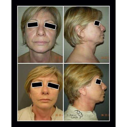 lifting visage avant apres lifting cervico facial photos chirurgie esthetique visage paris dr federico loreto chirurgien esthetique paris 16