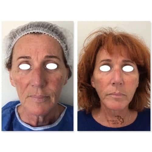 lifting visage avant apres lifting cervico facial photos lifting visage cou chirurgie esthetique visage paris docteur federico loreto chirurgien esthetique paris 16