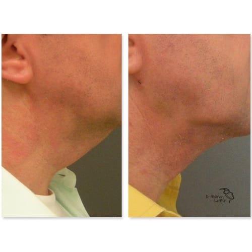 lifting visage avant apres lifting cervico facial photos lifting visage cou chirurgie esthetique visage paris dr federico loreto chirurgien plasticien paris 16