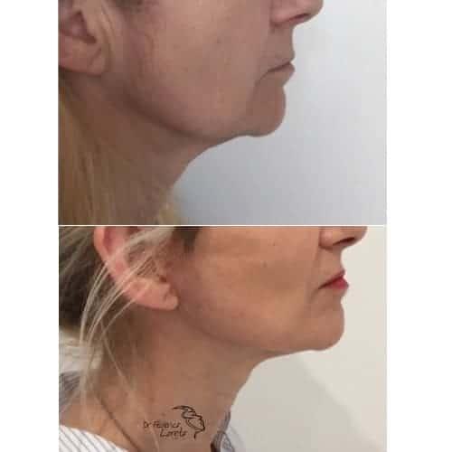 lifting visage avant apres lifting cou lifting cervico facial photos chirurgie esthetique visage paris docteur federico loreto chirurgien plasticien paris 16