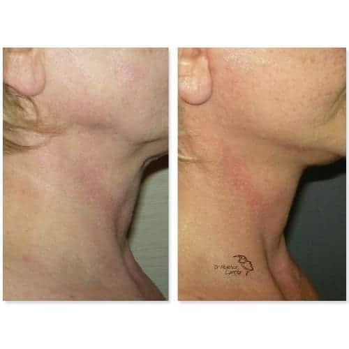 lifting visage avant apres lifting cou lifting cervico facial photos chirurgie esthetique visage paris dr federico loreto chirurgien esthetique paris 16