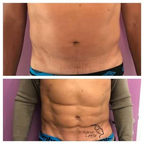 liposuccion abdominale liposuccion avant apres liposuccion ventre chirurgie esthetique corps paris dr federico loreto chirurgien esthetique paris 16