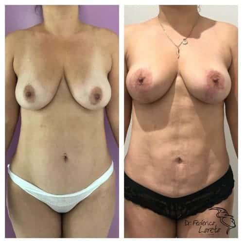 liposuccion paris liposuccion avant apres liposuccion abdominale chirurgie esthetique corps paris docteur federico loreto chirurgien plasticien paris 16
