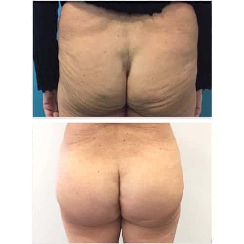 prothese fessier avant apres implant fessier avant apres implant fessier femme chirurgie esthetique corps paris docteur federico loreto chirurgien esthetique paris 16