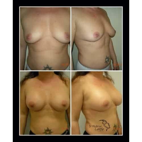 prothese mammaire avant apres implant mammaire avant apres implant mammaire naturel chirurgie esthetique seins paris dr federico loreto chirurgien plasticien paris 16