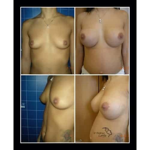 prothese mammaire avant apres implant mammaire naturel protheses mammaires paris chirurgie esthetique seins paris docteur federico loreto chirurgien plasticien paris 16