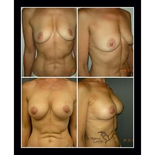 prothese mammaire avant apres implant mammaire naturel protheses mammaires paris chirurgie esthetique seins paris dr federico loreto chirurgien esthetique paris 16