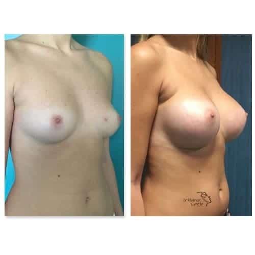 prothese mammaire avant apres implant mammaire naturel protheses mammaires paris chirurgie esthetique seins paris dr federico loreto chirurgien plasticien paris 16