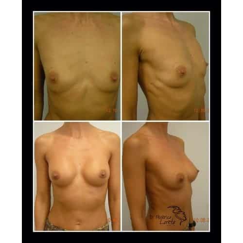 prothese mammaire avant apres protheses mammaires paris implant mammaire avant apres chirurgie esthetique seins paris dr federico loreto chirurgien esthetique paris 16