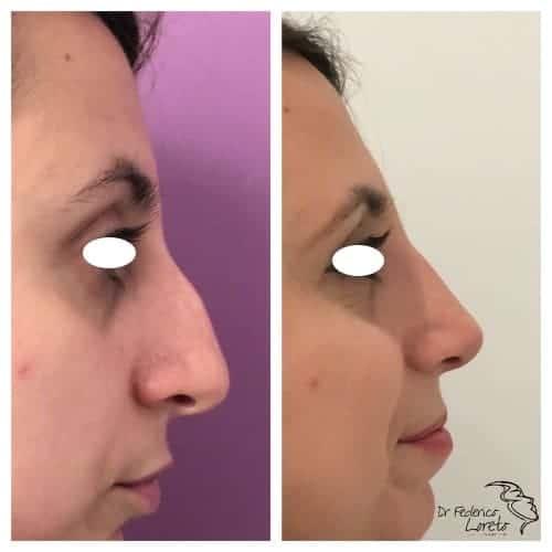 rhinoplastie avant apres rhinoplastie evolution rhinoplastie jour apres jour chirurgie esthetique visage paris docteur federico loreto chirurgien esthetique paris 16