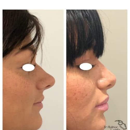 rhinoplastie avant apres rhinoplastie evolution rhinoplastie jour apres jour chirurgie esthetique visage paris dr federico loreto chirurgien plasticien paris 16