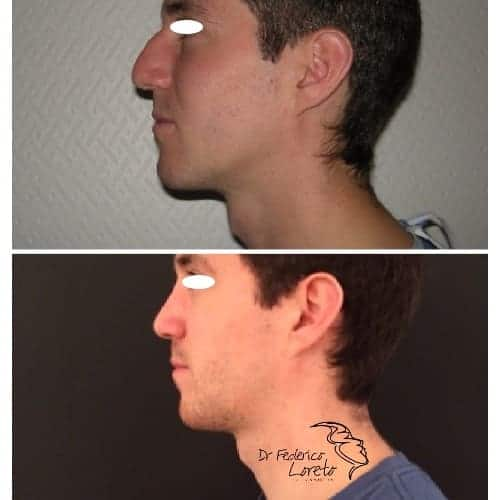 rhinoplastie avant apres rhinoplastie homme rhinoplastie evolution chirurgie esthetique visage paris dr federico loreto chirurgien plasticien paris 16