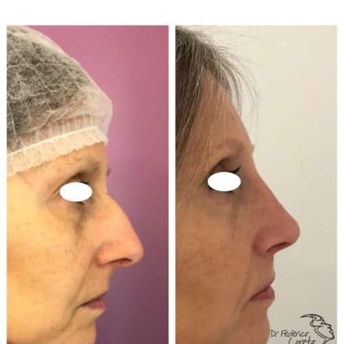 rhinoplastie avant apres rhinoplastie jour apres jour rhinoplastie evolution chirurgie esthetique visage paris docteur federico loreto chirurgien esthetique paris 16