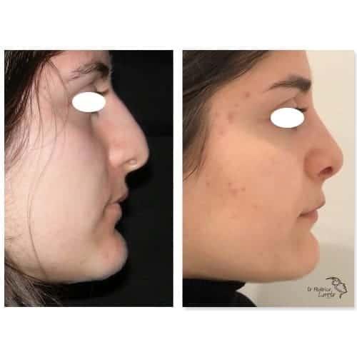rhinoplastie avant apres rhinoplastie jour apres jour rhinoplastie evolution chirurgie esthetique visage paris dr federico loreto chirurgien esthetique paris 16