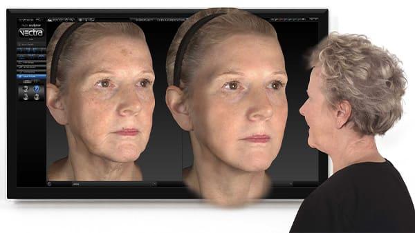 vectra 3d crisalix virtual aesthetics crisalix 3d simulation docteur federico loreto chirurgien esthetique paris 16 chirurgie avant apres paris