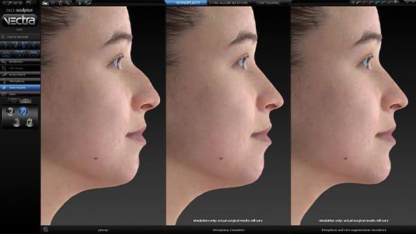 vectra 3d crisalix virtual aesthetics crisalix 3d simulation dr federico loreto chirurgien esthetique paris 16 chirurgie avant apres