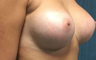 Implants mammaires et lymphome (LAGC) : questions / réponses