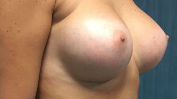 implants mammaires lagc protheses mammaires lagc dr loreto chirurgie esthetique paris 16