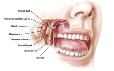Bichectomie ou ablation des boules de Bichat