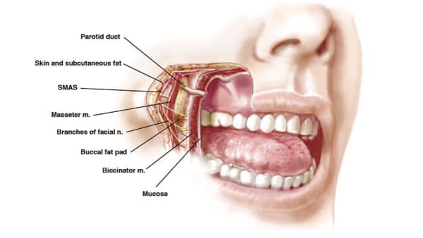 ablation boules de bichat bichectomie paris chirurgien esthetique du visage paris docteur loreto