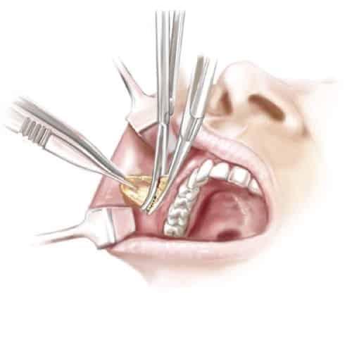 ablation boules de bichat bichectomie paris docteur loreto chirurgien esthetique paris