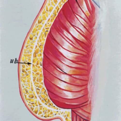 lipofilling fessier augmentation fesses graisse docteur loreto chirurgien esthetique paris 16