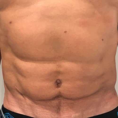 liposuccion abdominale liposuccion hd haute definition docteur federico loreto chirurgien esthetique paris 16 specialiste liposuccion homme avant apres
