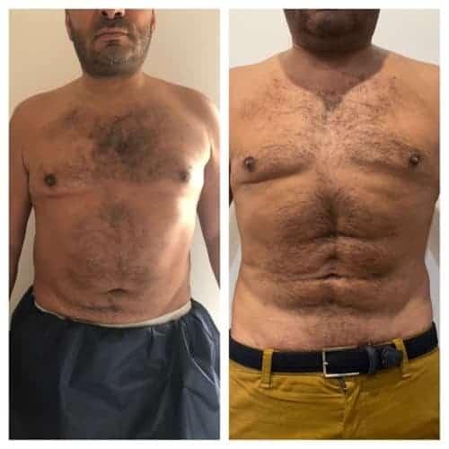 liposuccion hd haute definition liposuccion abdominale docteur federico loreto chirurgien esthetique paris 16 specialiste liposuccion avant apres