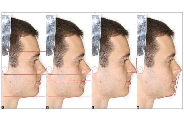 Profiloplastie : rhinoplastie et génioplastie médicale et/ou chirurgicale
