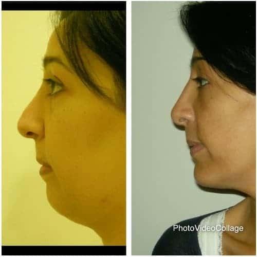 profiloplastie schema visage rhinoplastie genioplastie medicale chirurgicale dr federico loreto chirurgien esthetique paris 16