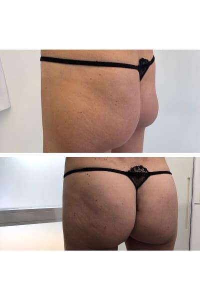 injections hyacorp avant apres docteur loreto federico chirurgien esthetique paris 16 specialiste injections fesses